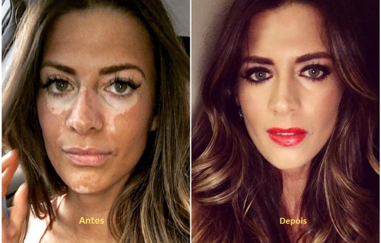 noticia Empresária investe em maquiagem que valoriza a beleza de mulheres com vitiligo