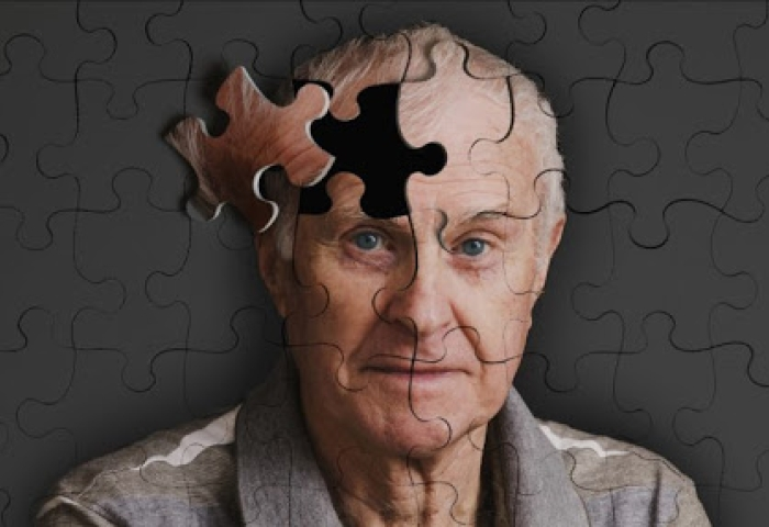 noticia Setembro  é o mês mundial do Alzheimer. Conheça 10 dicas de alerta da doença