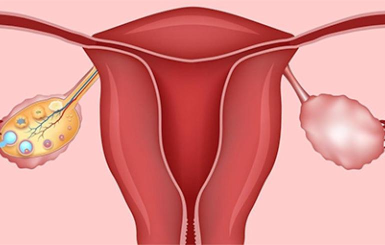 noticia Óvulos policísticos é uma das principais causas de infertilidade feminina