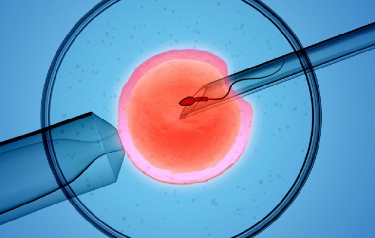 noticia Novas regras do CFM para tratamentos de fertilização beneficiam pacientes de baixa renda - por Arnaldo Schizzi Cambiaghi*